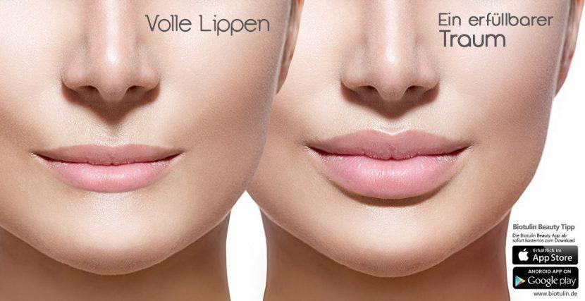 Vollen Lippen für den perfekten Kussmund